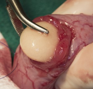 Stone Being Removed From A Urinary Bladder