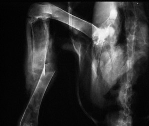 Close up X-ray of bird fractured shin bone