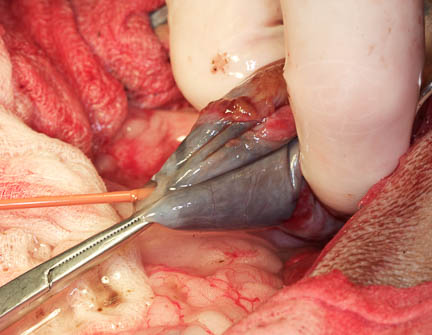 Bile removal from distended gallbladder