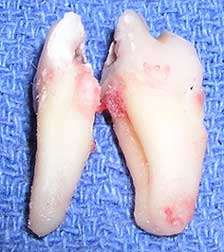 Cracked Tooth After Removal