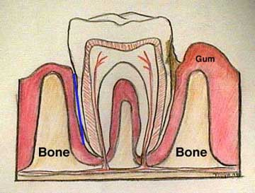 Diagram of a Normal Tooth
