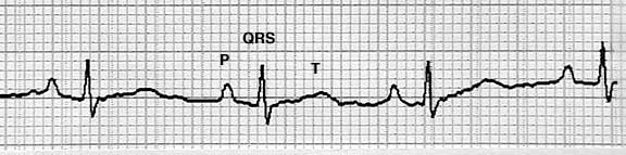 EKG Strip Showing the Electrical Waves