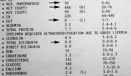What Is Low Gamma-GT Intrahepatic Cholestasis?
