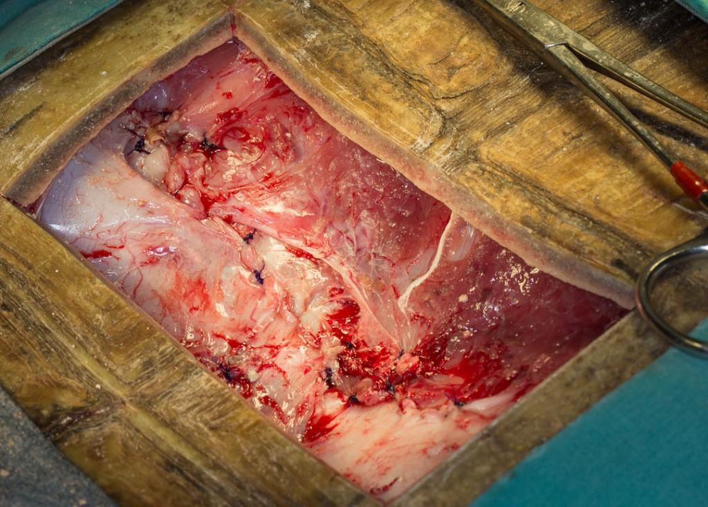 CDTBladderstone-suturelinea-1024x733.jpg
