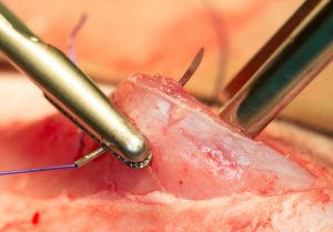 Suturing muscle incision