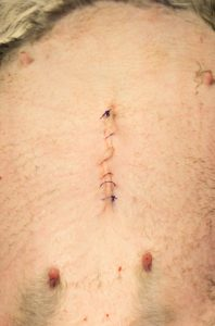 Final skin sutures