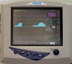 Anesthetic Monitor