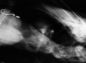X-ray of a pelican with a fish hook and fishing line it is body