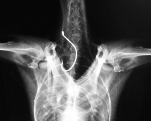 X-ray of a large hook stuck in the crop of a cormorant