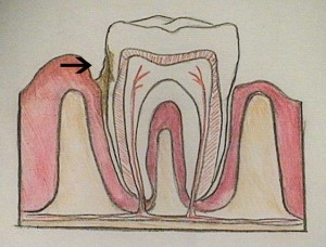 Dental-ToothDiagram