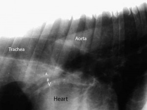 X-ray Close Up Of Aorta, Heart, And Trachea