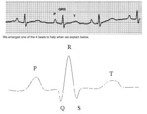 Picture of an EKG Strip