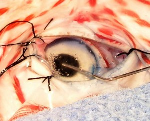 Removing the cataract with a special instrument