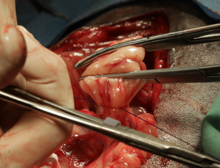 Adding clamps to spleen blood vessels