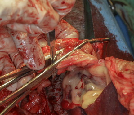 Cutting blood supply to spleen