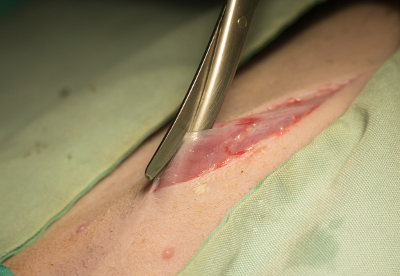 incision-linea-adrenal-surgery-ferret