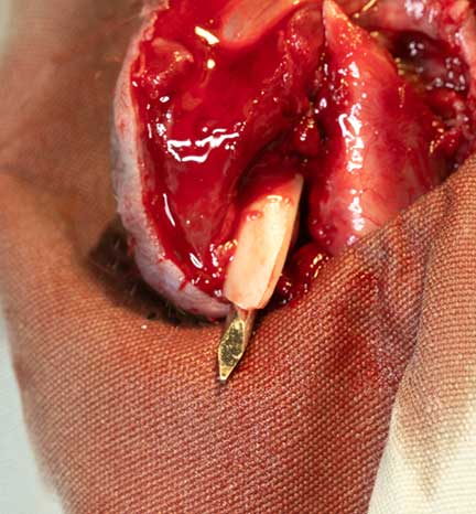 Pin protruding out of the bone at the fracture segment