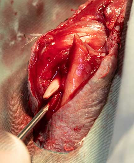 Inserting pin into one of the bone segments