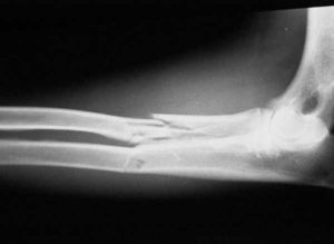 X-ray of fractured radius and ulna
