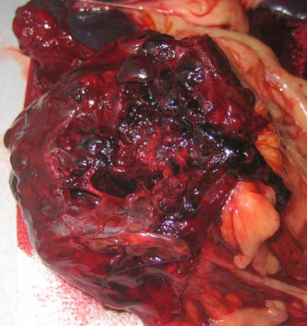 Spleen hematoma opened up