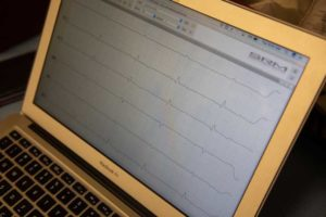 EKG Reading On Computer Screen