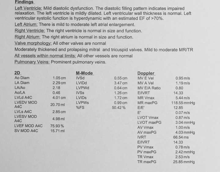 Echocardiogram Report