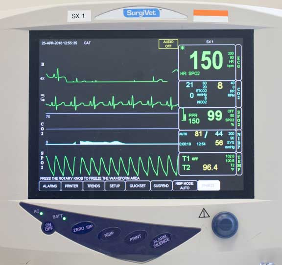 Anesthetic monitor showing heart rate and respiratory rate