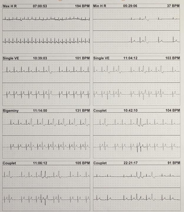 Teaching EKG