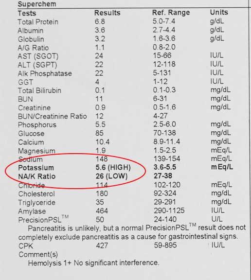 Blood panel with low sodium potassium ratio