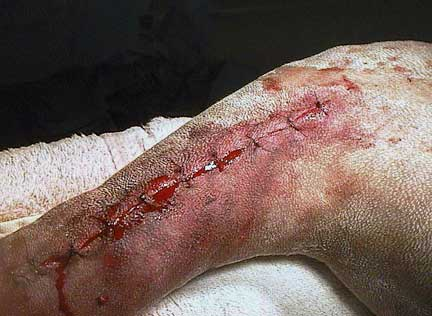 Sutured skin at end of surgery