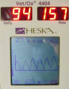 Pulse Oximeter showing an oxygen saturation of 94%