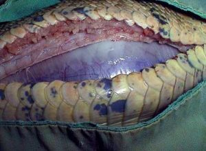 Impacted intestine during surgery