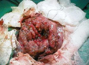 Inflamed mucosa (inner lining) of the intestines