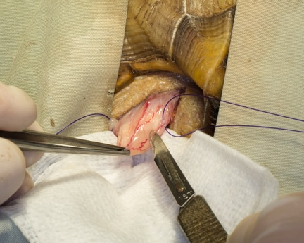Exteriorizing bladder and placing stay sutures