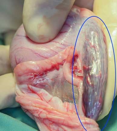 Testicle showing blood supply