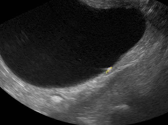 Ultrasound of small bladder stone